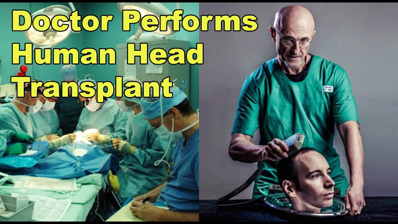 Human Head Transplant Performed By Doctor In China